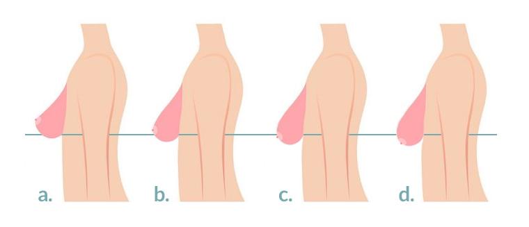 ptose mammaire antibes