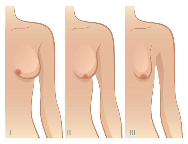 seins tubéreux