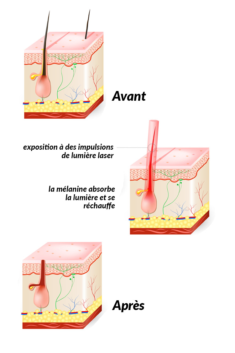 épilation laser antibes
