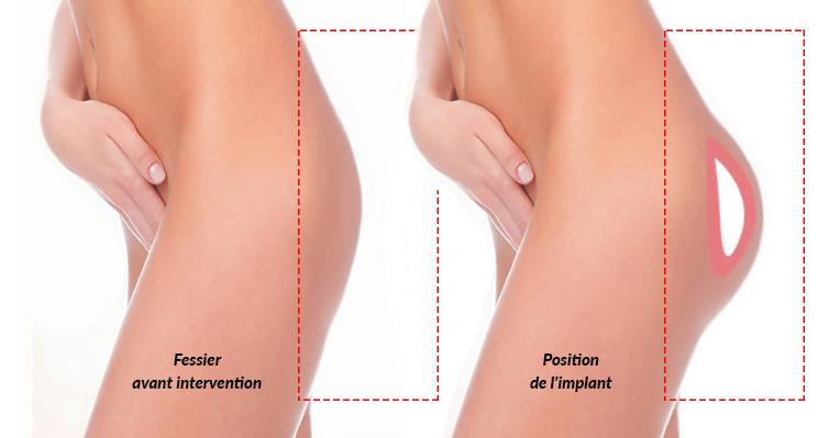 prothèse de fesses