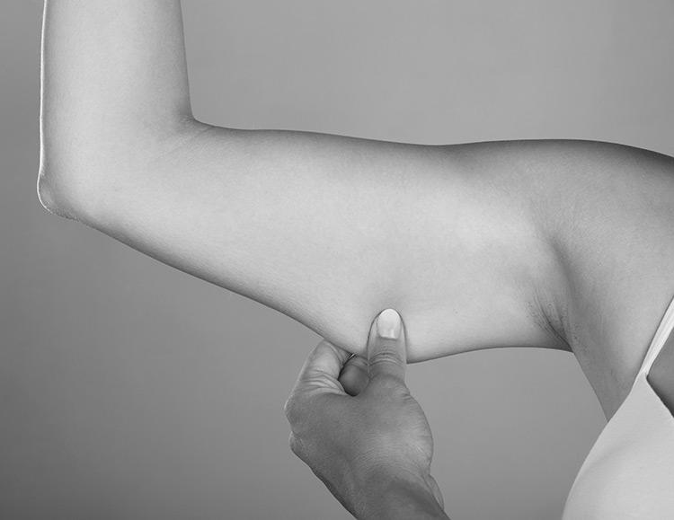 lifting bras antibes