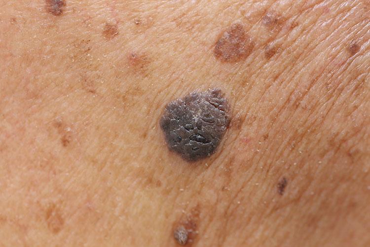 lésion de la peau et des tissus mous