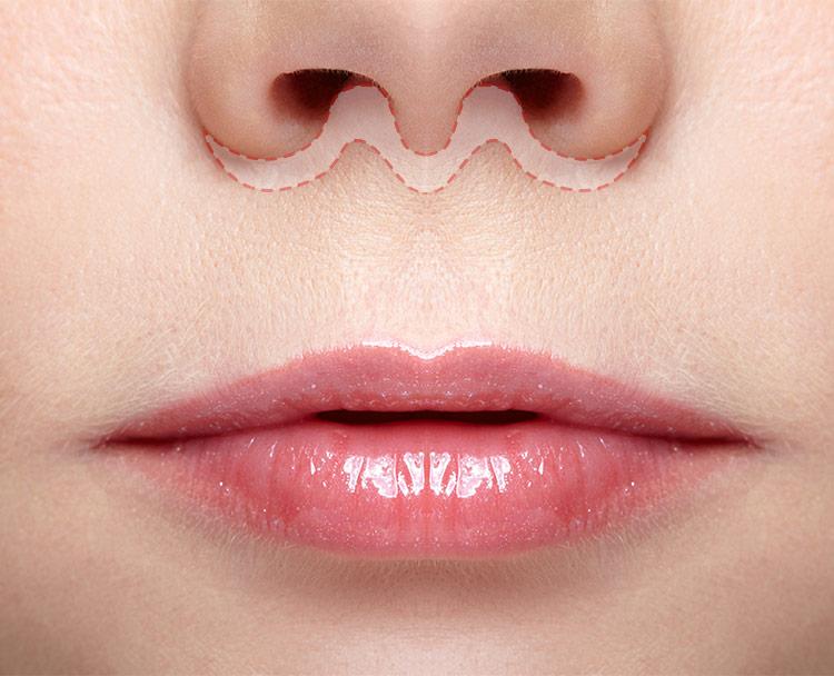 lifting lèvre supérieur