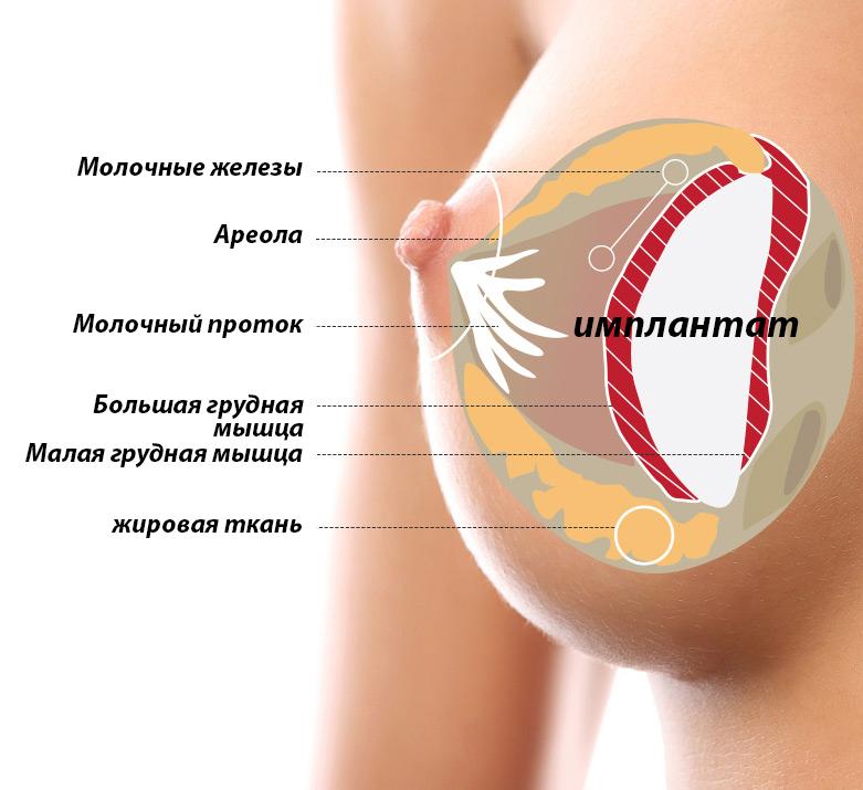 Docteur Merle - косметическая хирургия - Antibes - увеличивающая маммопластика