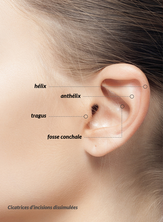 Docteur Merle - Chirurgie Esthétique - Antibes - Otoplastie