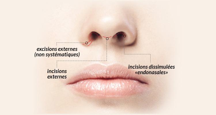 Docteur Merle - Chirurgie Esthétique - Antibes - Rhinoplastie