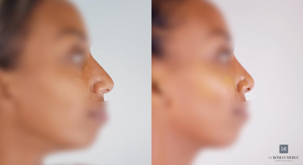 rhinoplastie antibes docteur merle résultat