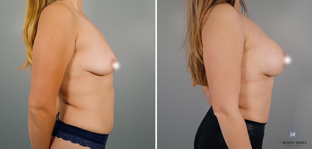 augmentation mammaire antibes