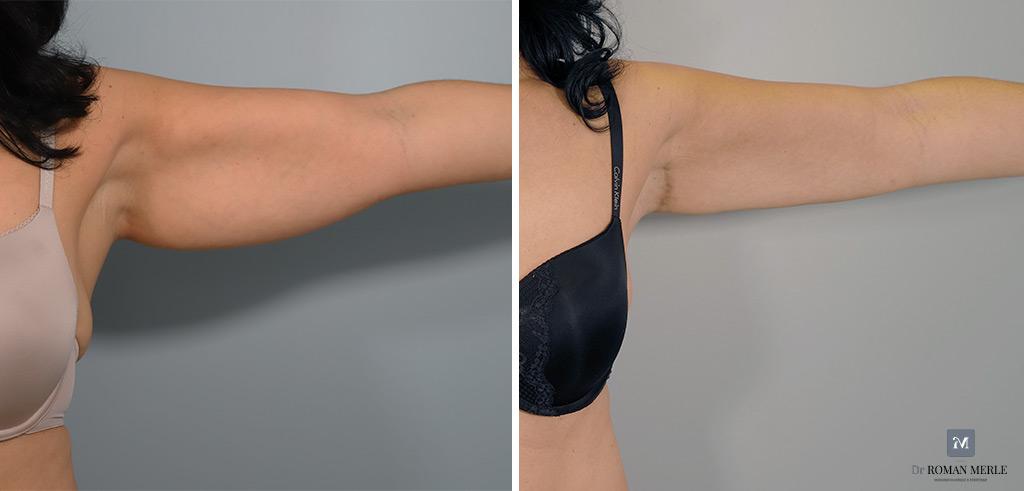 lifting des bras antibes